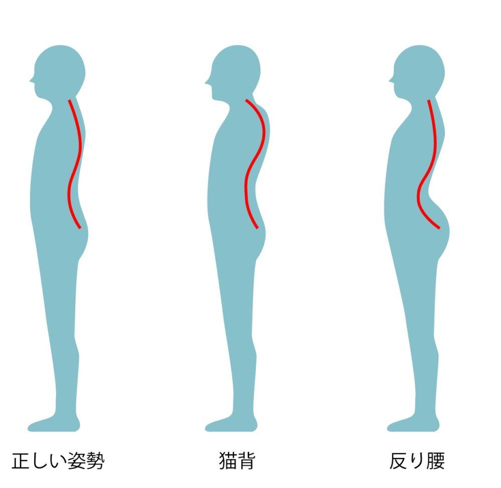 反り腰を改善!反り腰と猫背の関係とは?正しい座り方をチェック