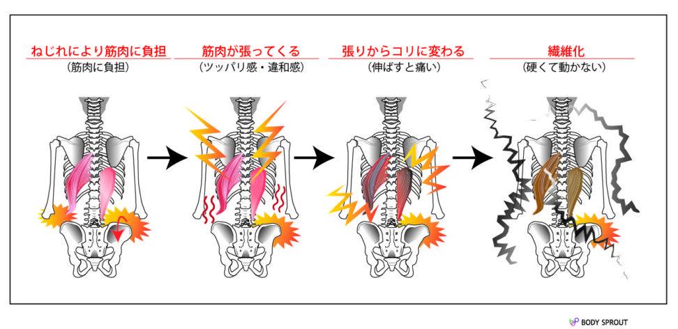 「ゆがみの発生」→「張りの出現」→「コリへの変化」→「線維化」の順番で痛みが生成されて悪化していく